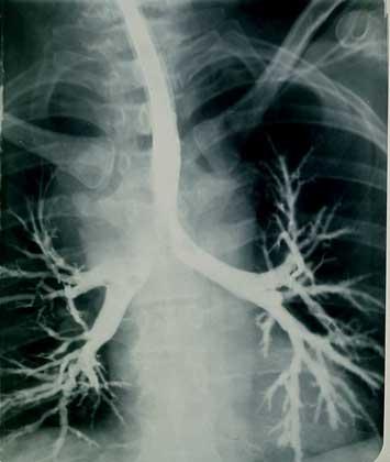 ТРАХЕЯ, видная в центре рентгенограммы, разделяется на два главных бронха, ведущих к правому и левому легкому и разветвляющихся на бронхиальное дерево.       IGDA